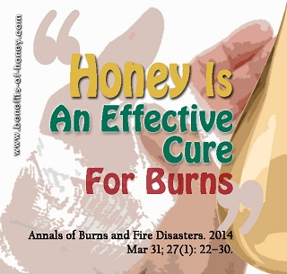 honey as burn treatment image