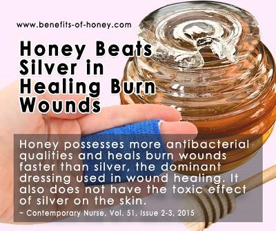 honey as burn treatment image