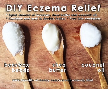 eczema remedy with beeswax poster image
