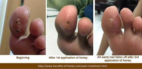 wart treatment with honey image
