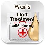 warts honey treatment